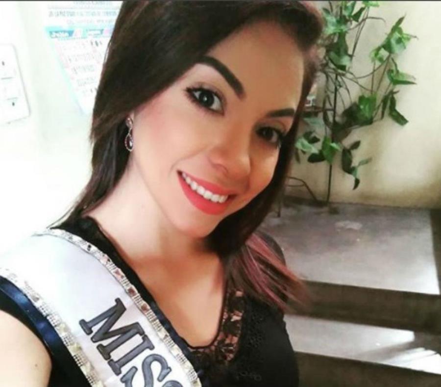Una Miss peruana está coma tras caer de una escalera (semisquare-x3)