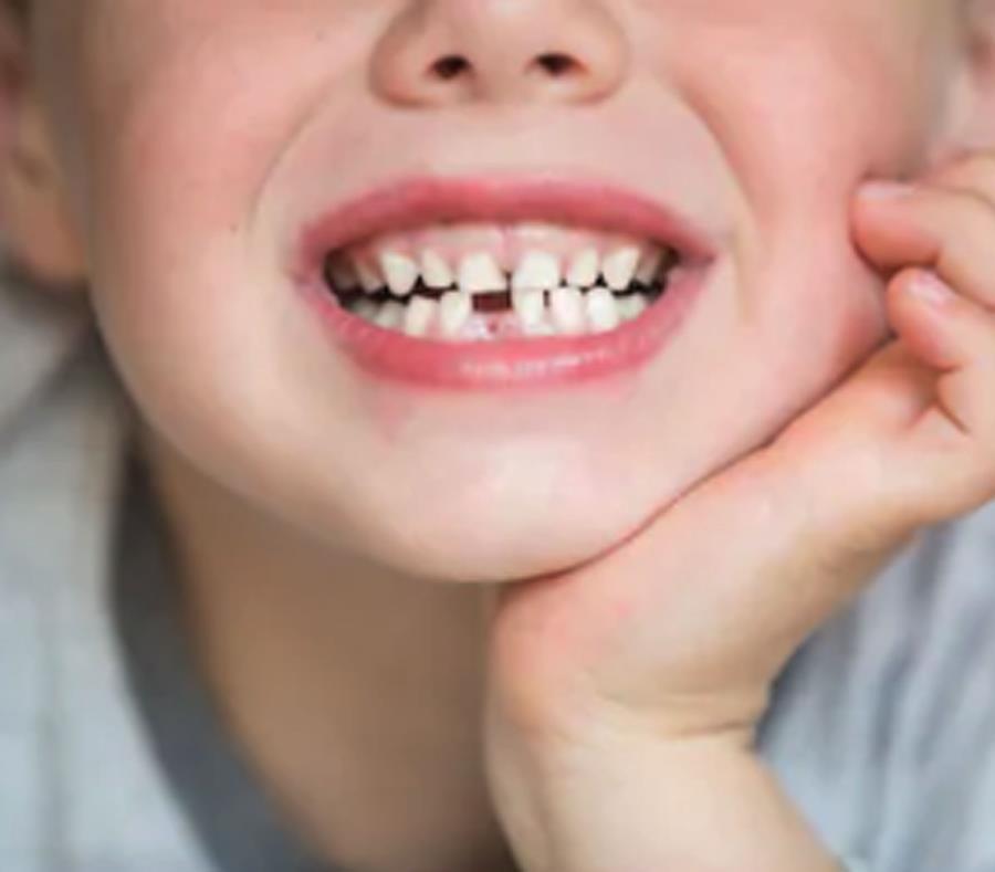 Los científicos pudieron analizar las distintas capas de los dientes y determinaron que la contaminación comenzó al menos desde el tercer trimestre de embarazo. (semisquare-x3)