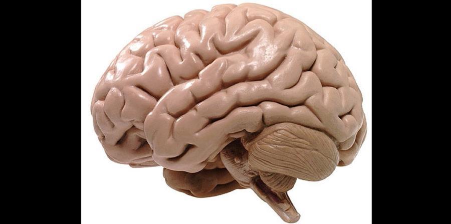 En el estudio se realizaron distintas pruebas: escáner cerebral, test genéticos y análisis del líquido cefalorraquídeo, que rodea y protege el cerebro y la médula. (horizontal-x3)