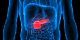 Científicos encuentran la forma de tratar el cáncer pancreático mortal en 14 días