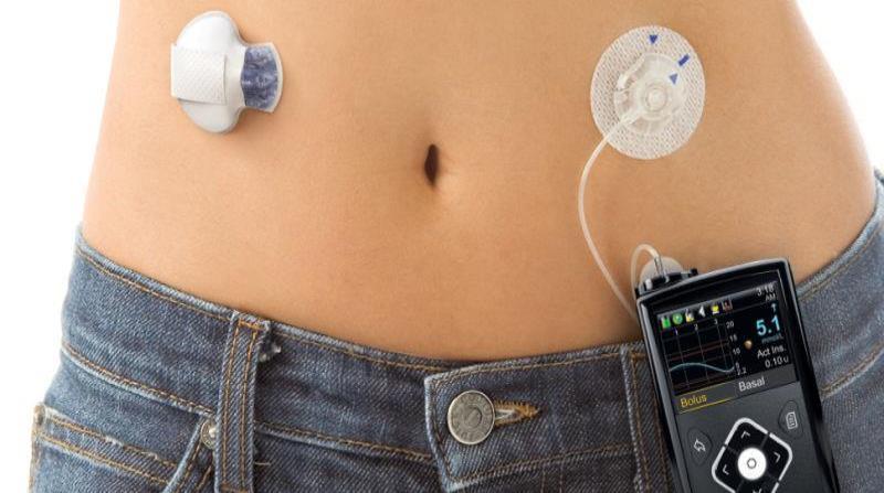 El dispositivo para diabetes MiniMed 670G será presentado mañana a la clase médica local por la doctora Francine Ratner Kaufman, principal oficial médica y VP a cargo de Asunto Clínicos, Médicos y Salud en Medtronic. (Suministrada) (horizontal-x3)