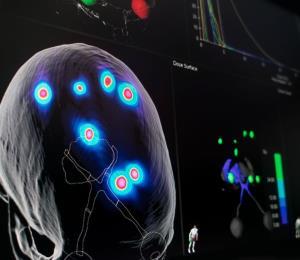 Investigadores logran aumentar la memoria con un implante cerebral