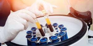 Plasma convaleciente: la ciencia detrás de la terapia que pudiera contrarrestar la COVID-19