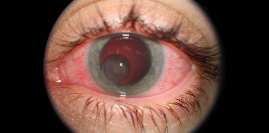 6f20d6dadc Es un peligro usar lentes de contacto decorativos falsos y no aprobados.  (Angel Luis García)