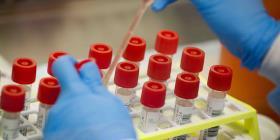 CDC no recomienda pruebas serológicas para decidir reapertura de escuelas y centros de trabajo