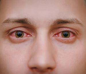La conjuntivitis también puede ser un síntoma de COVID-19
