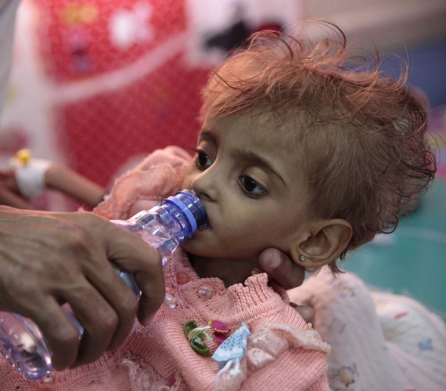 85.000 niños han muerto en Yemen tras intensificación de la guerra — Desgarrador