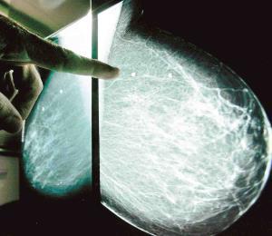 ¿A qué se debe mi cáncer de mama?