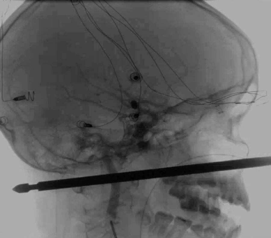News Network muestra el resultado de unos rayos X en la cual se ve una brocheta atravesada en la cabeza del niño Xavier Cunningham