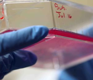 Las células madre, ¿curan o no curan?