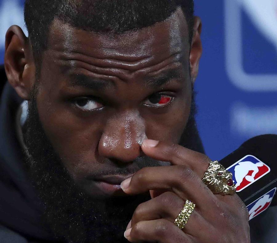LeBron James, de los Cavaliers de Cleveland, terminó con un ojo rojo tras la derrota ante los Warriors de Golden State. (AP) (semisquare-x3)